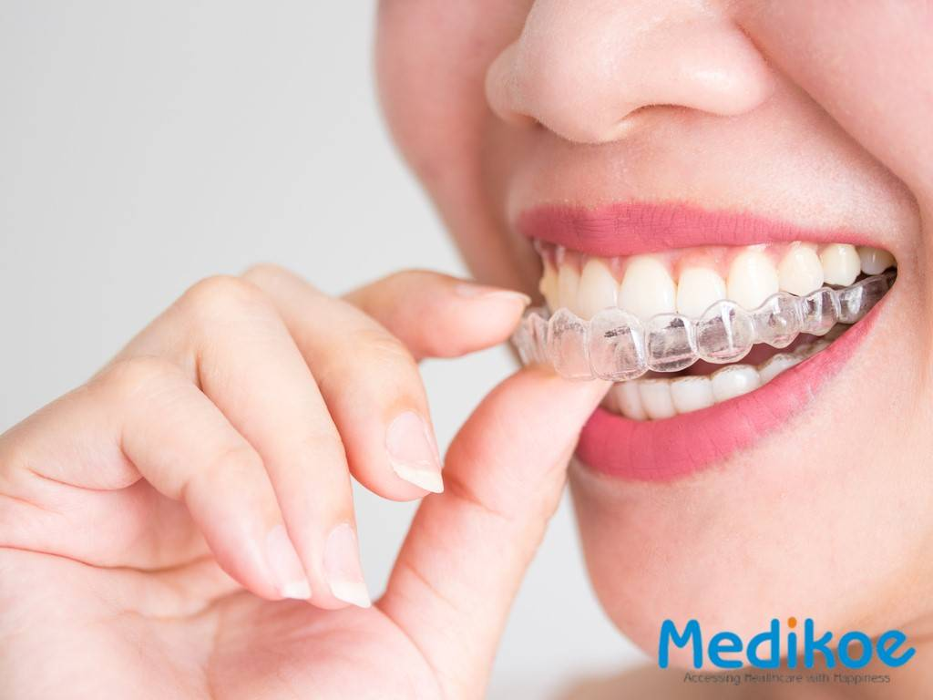 What is teeth alignment(Invisalign)?