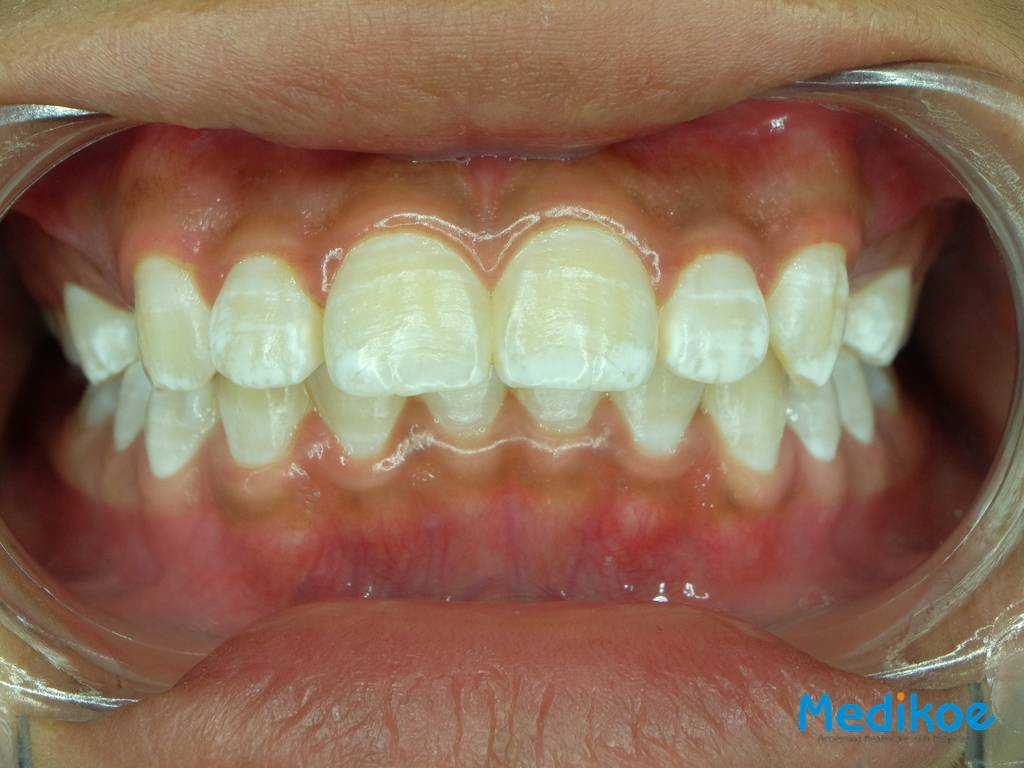 What is dental fluorosis?