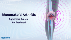 Rheumatoid Arthritis-Symptoms, Causes and Treatment