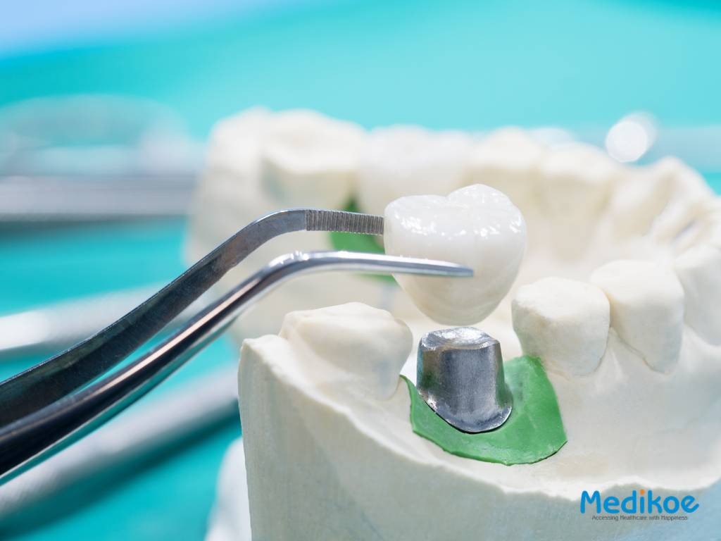 Artificial Teeth and Their Treatment and Procedure