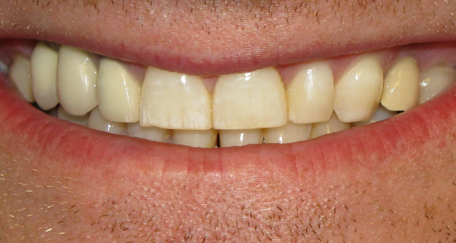 Inflammation of the Tooth Pulp - Pulpitis