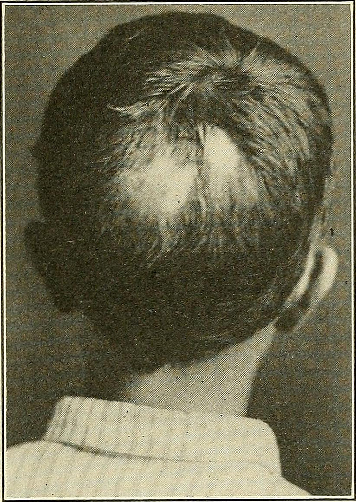 What is Alopecia Areata?(Patchy  Baldness)