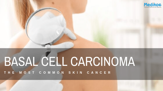 Basal Cell Carcinoma The Most Common Skin Cancer Medikoe