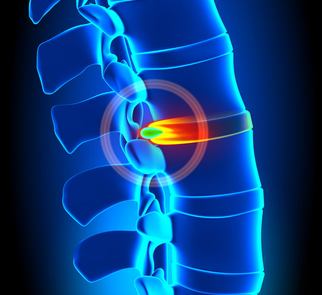 PROLAPSED DISC: CAUSES, SYMPTOMS & TREATMENTS