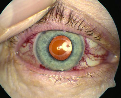 Bulging eyes: Symptoms, causes, and treatment