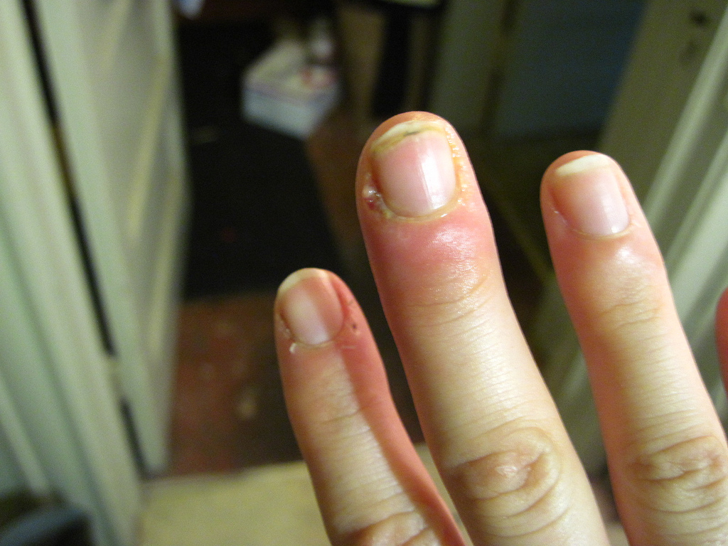 What are the reasons for yellow nails?