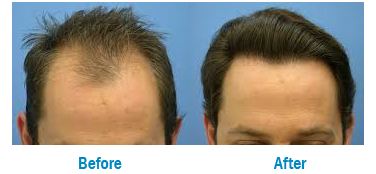 Whai is Follicular Unit Extractionor FUE and FUT?