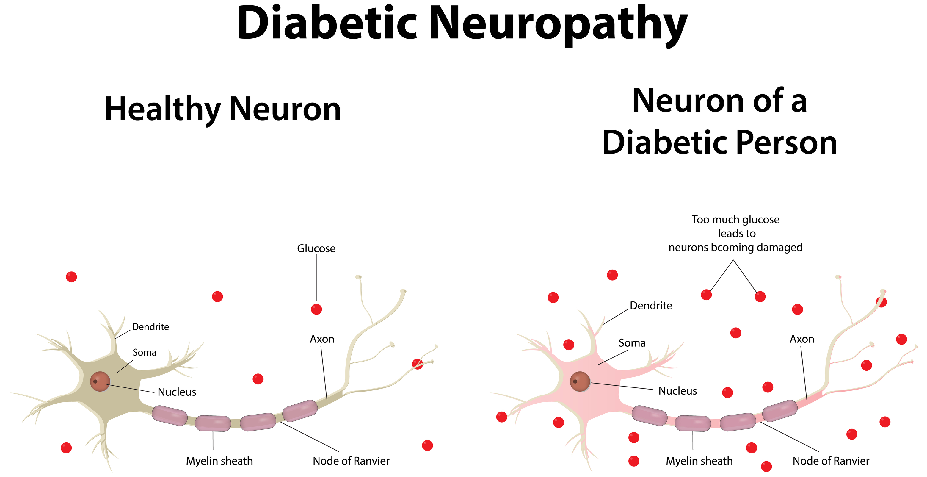 Diabetic Neuropathy - The Nerve Damage of Diabetes