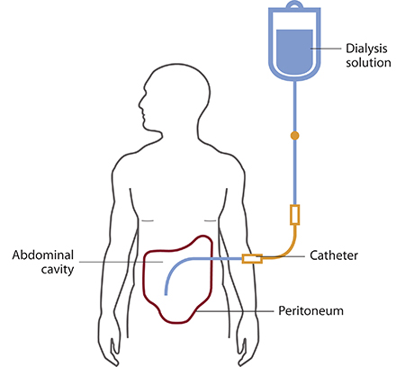 What is Dialysis and How it is Done?
