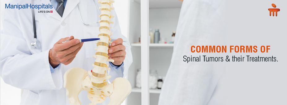 Common Forms Of Spinal Tumors And Their Treatments