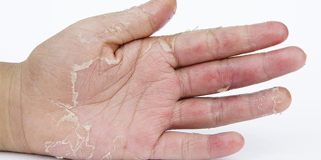 Peeling skin? Find out why