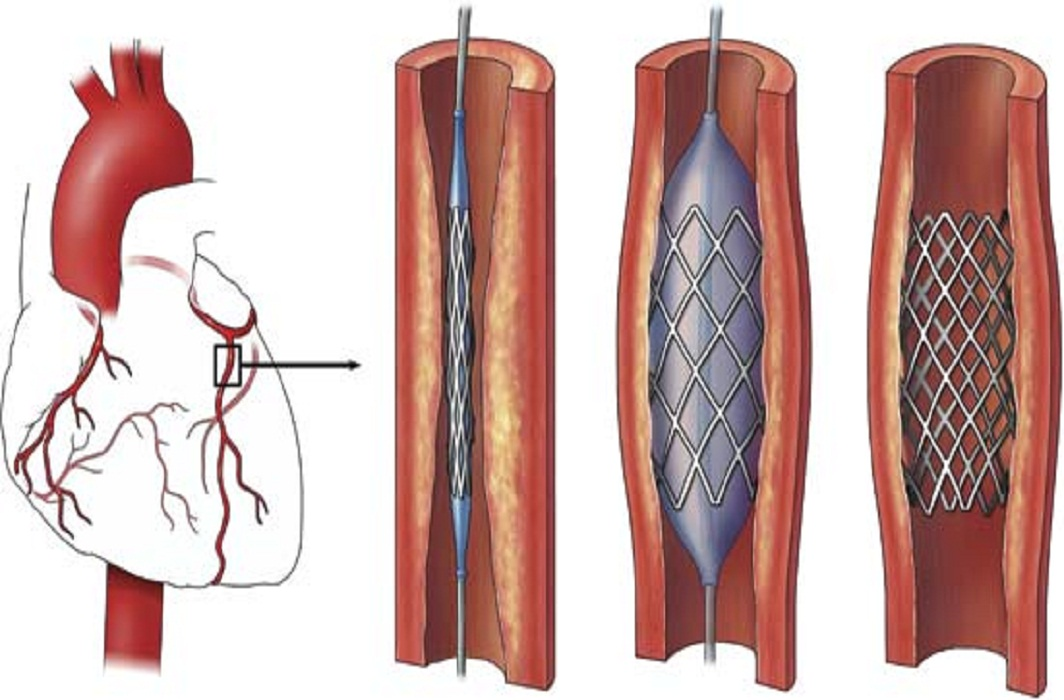 What is an Angioplasty?
