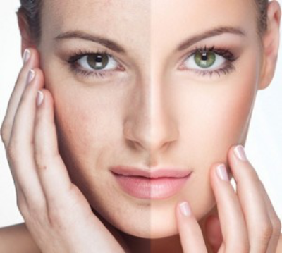 What are Non-surgical Facelifts?