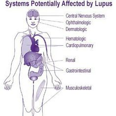 Understanding Lupus-Facts and Basics