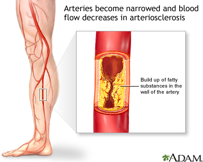 What is Vascular disease?