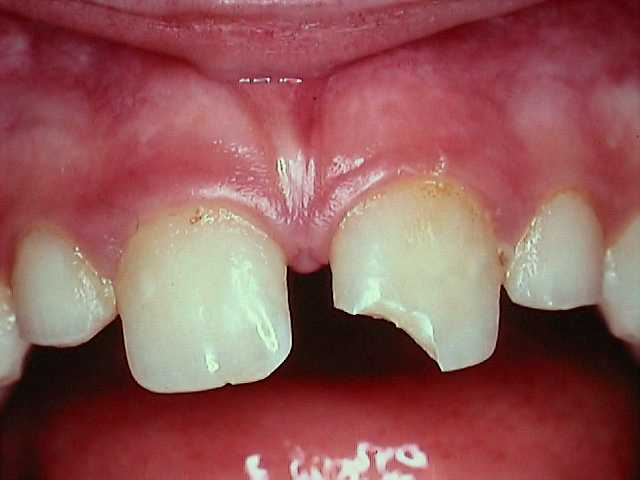 How Do You Treat Tooth Injury?