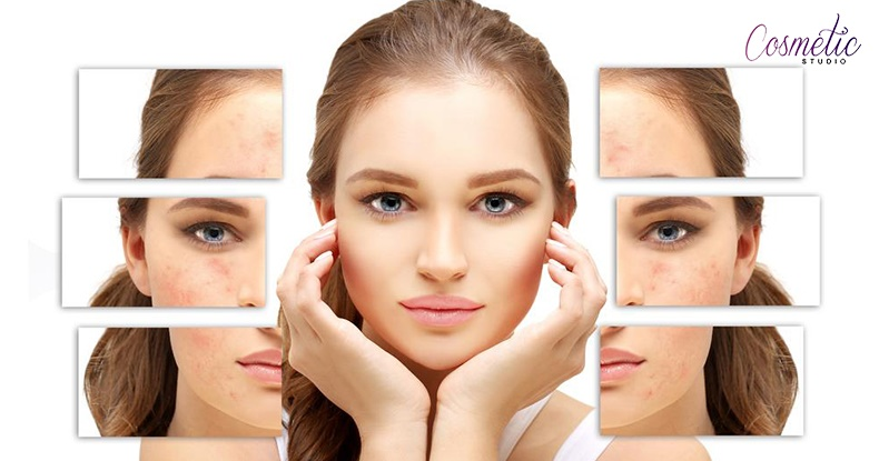 6 Most Effective Ways to Get Rid of Acne Marks Naturally!!..