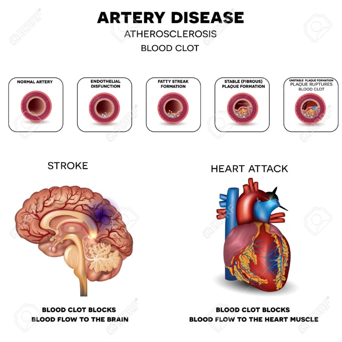 What is Arterial Blockage