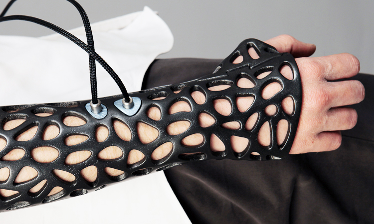 A cultural revolution is on the way- A company will make the 3D printed cast a real choice